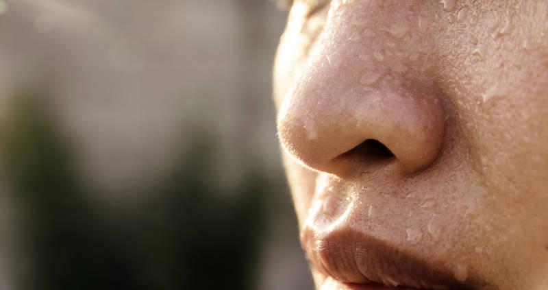 svettningar i ansiktet